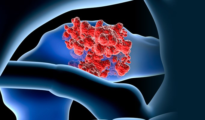 Vaccine Combination Improves Survival in Metastatic Pancreatic Cancer